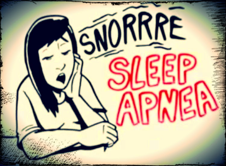 sleep-apnea