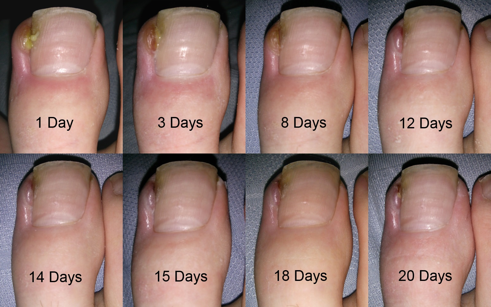 Types of toe infections - Awesome Nail