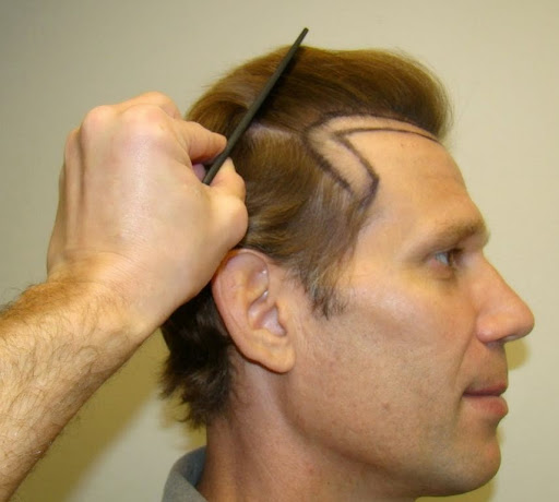 How To Prevent Hair Loss From Replacement Treatment