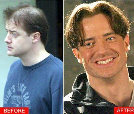 hair transplant timeline