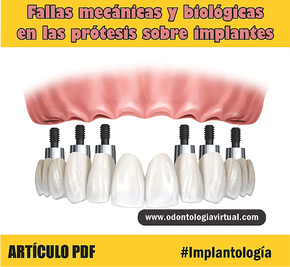 prótesis-implantes-dentales