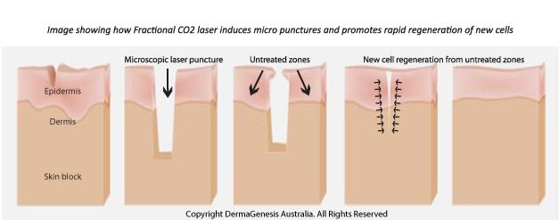 Cara menyembuhkan kulit berlubang bekas jerawat 7