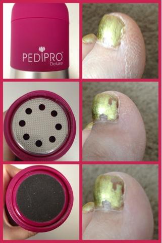PediPro