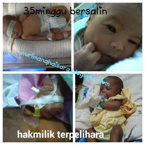 premature baby,baby pramatang,35 minggu kelahiran pramatang,baby 2.4kg