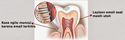 lapisan email terkikis menyebabkan gigi menjadi sensitif