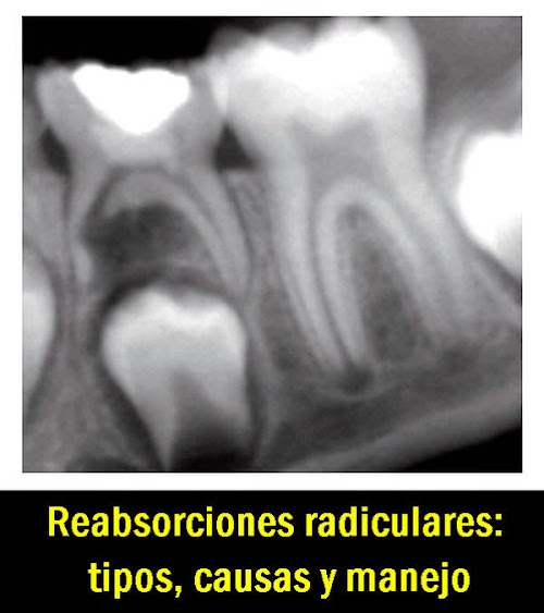 reabsorcion-radicular