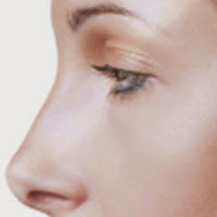 Be Aware of the Possible Risks Caused Due to Rhinoplasty Surgery post image