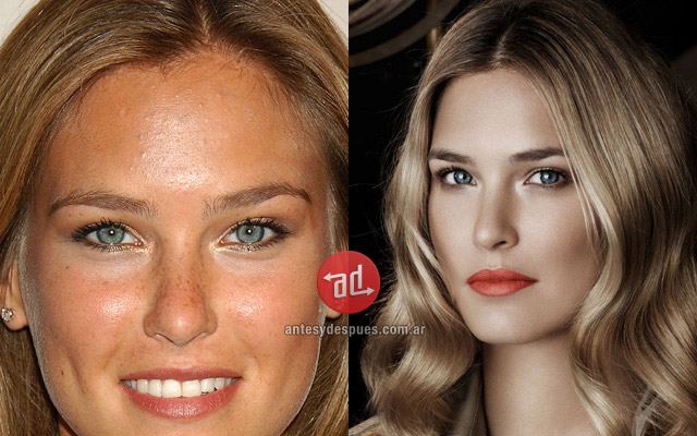 Photos of Bar Refaeli with acne