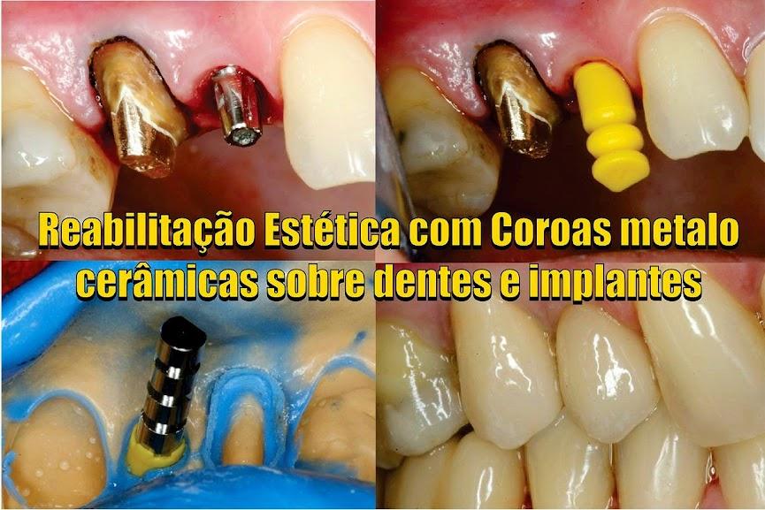 coroas-dentales