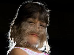 Sakit Langka, Wajah Gadis Mirip Serigala