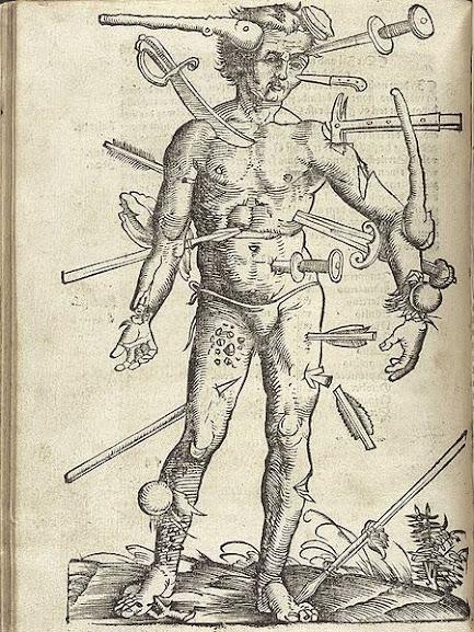 Ilustração de Hans Von Gersdorff (1455-1529)