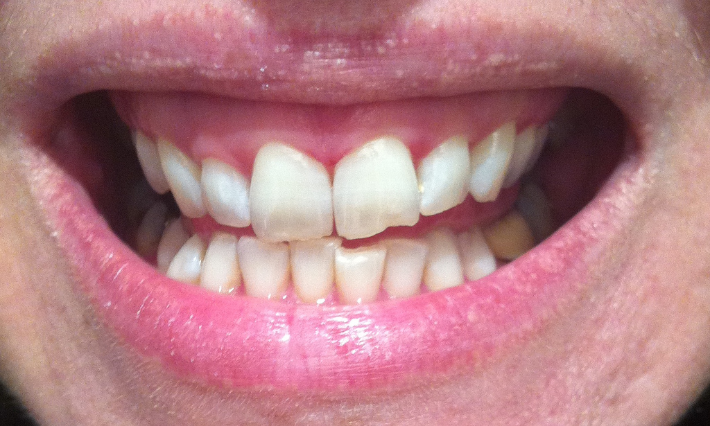 Can Whitening Tooth Past Whiten Naturally Yellow Teeth