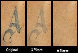 como remover tatuagem