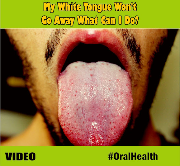 white-tongue
