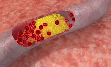 Cara Mengatasi Kolesterol Tinggi Dalam Darah   Obat Herbal Alternatif