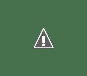 3D Printing, 3D Printer, 3D Printed stuff, 3D Printed material, Kolkata Bloggers, Prosthetics, 3D printed jaw, 3D Printed prosthetics