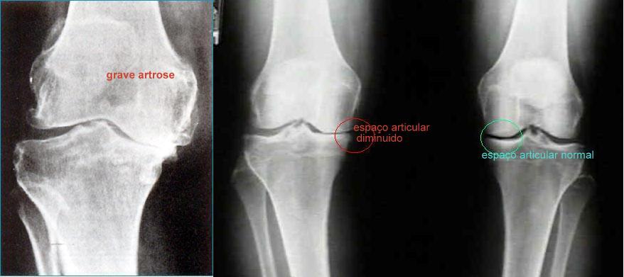 artrose joelho