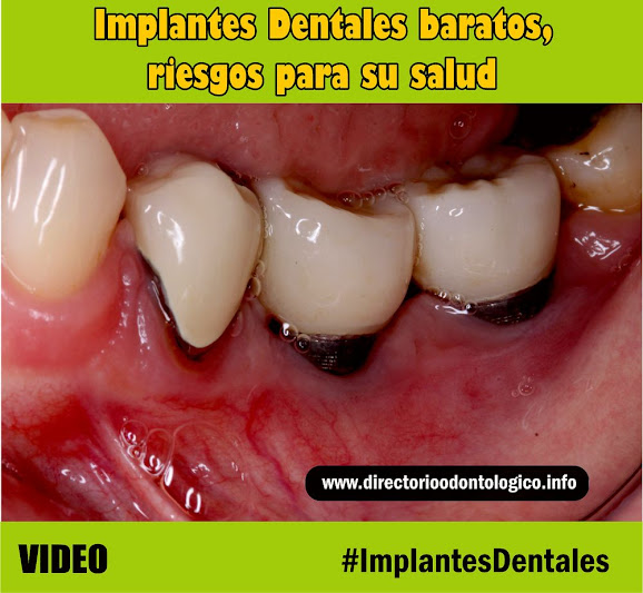 implante-dental-barato