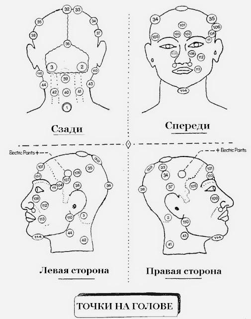 Схема проведения кровопускания