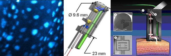 células de cuerda vocal con fluorescencia, esquema del diseño y esquema de funcionamiento