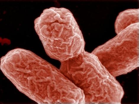 Gambar Bakteri E Coli