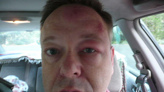 spider bites on forehead