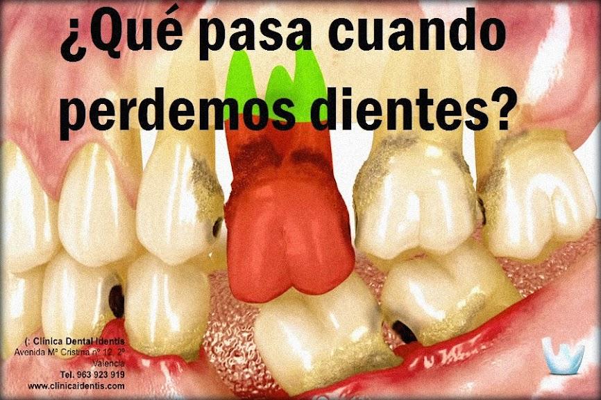 perdida-dental