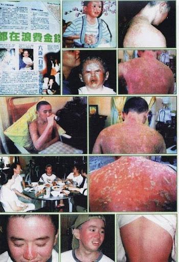 psoriasis%252520sembuh Testimonial Naturally Plus