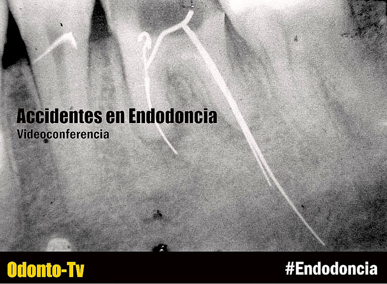 accidentes-endodoncia