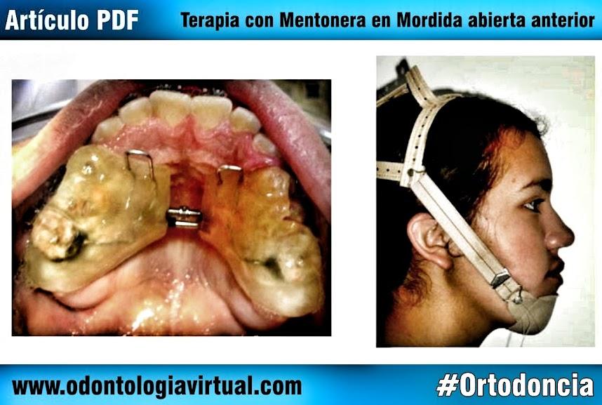 mentonera-en-ortodoncia
