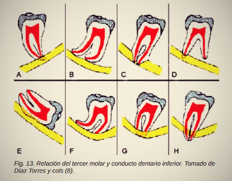 conducto-dentario-inferior