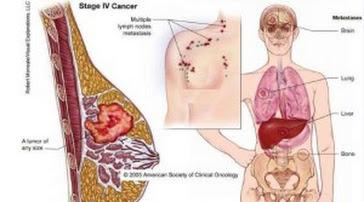 kanker payudara11 300x167 Tingkat Keparahan Pada Stadium Kanker Payudara