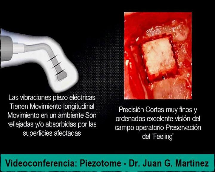 Piezotome