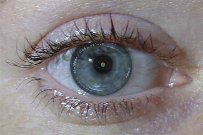 Ojo con el iris de objetivo