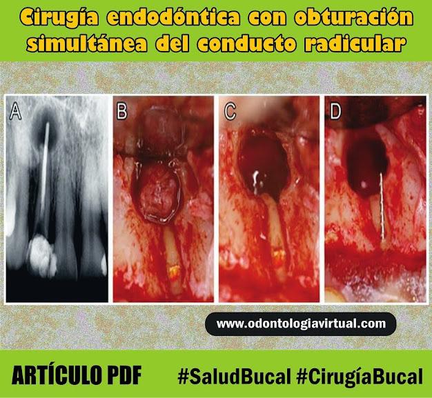 cirugia-endodontica