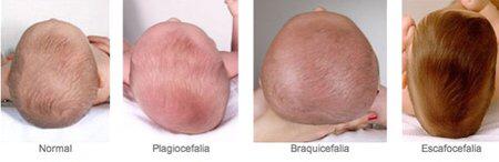 torticolis-congenita-deformidad-cabeza-bebes-plagiocefalia-braquicefalia-casco-ortopedico
