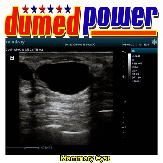 Mindray-Z6-Mammary-Cyst-A-Well-Balanced-Ultrasound-Made-in-China