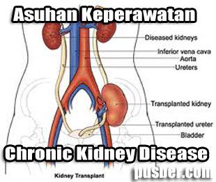 Asuhan Keperawatan Chronic Kidney Disease, ASKEP CKD