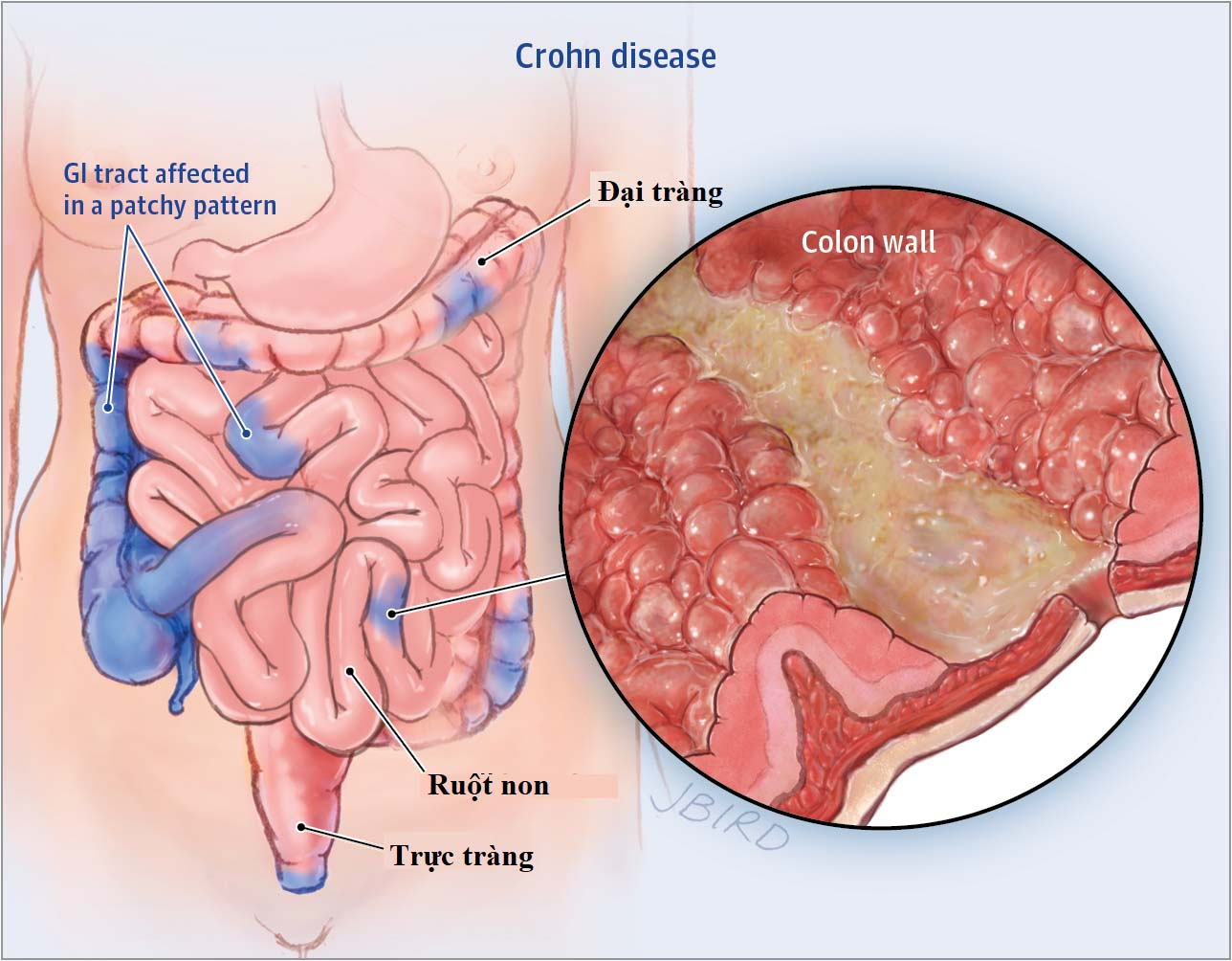 Vị trí viêm do bệnh Crohn