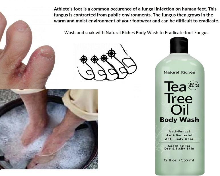 tea tree oil fungus.png