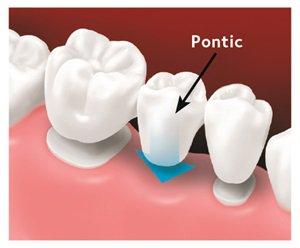Diagram of custom-made bridge on tooth