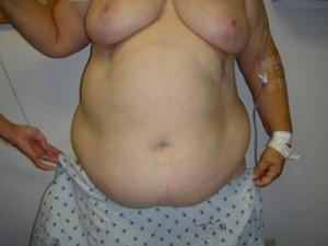 before liposuction surgery in new jersey