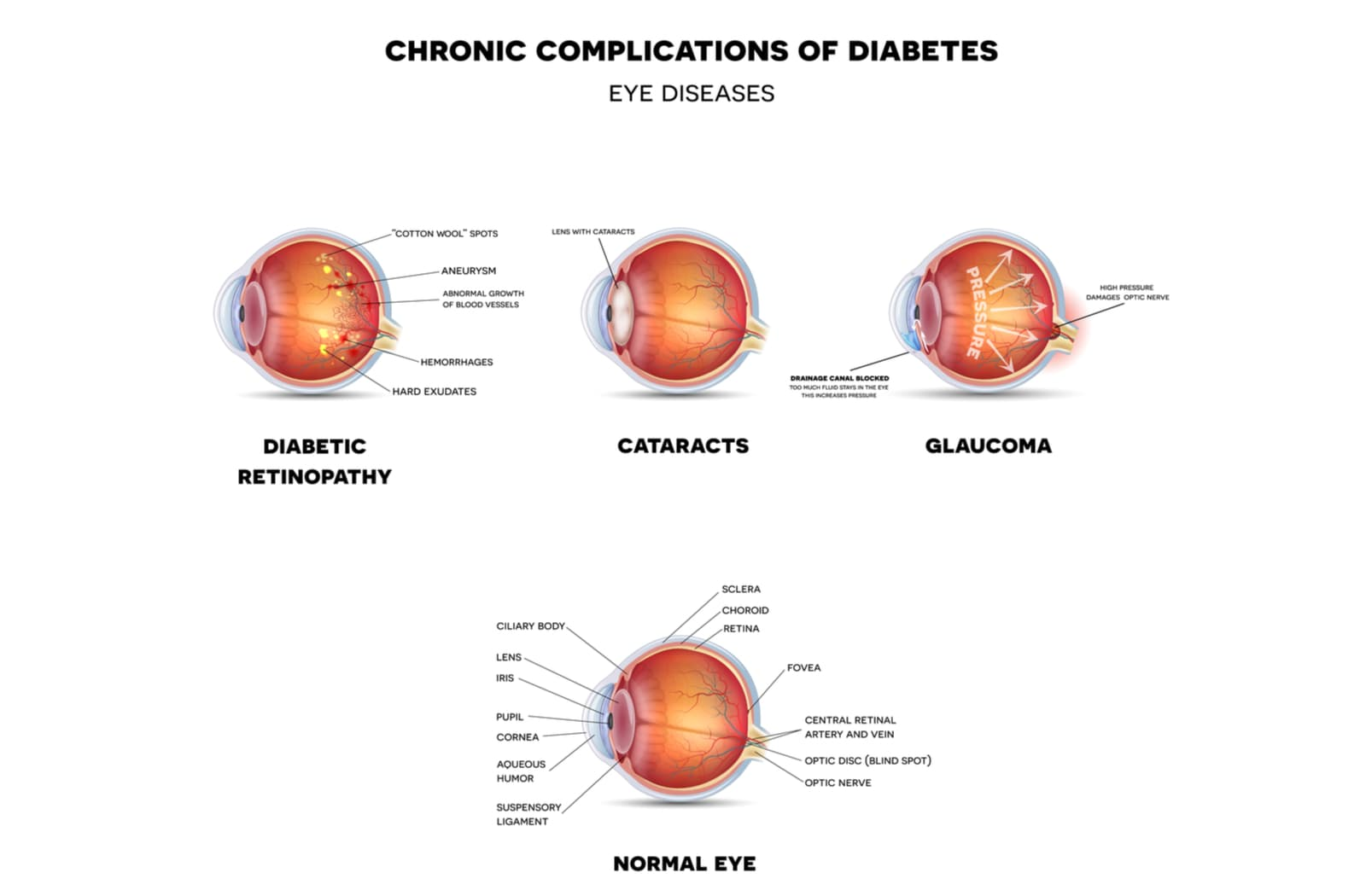 A diagram comparing a normal eye with eyes that have diabetic retinopathy, cataracts, and glaucoma