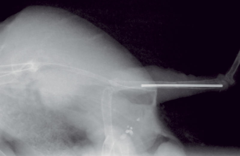 Radiograph of a titanium pin in the marrow cavity, having never transversed a joint surface