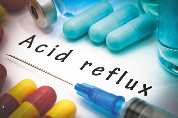 acid reflux image