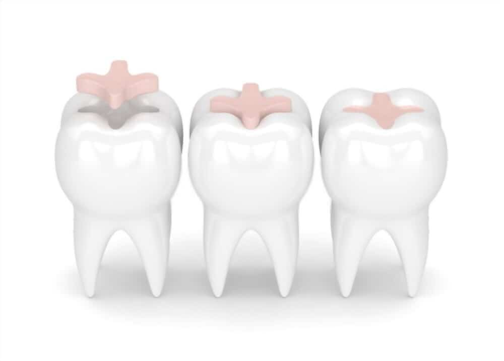Dental onlay is the treatment for bigger cavity holes.