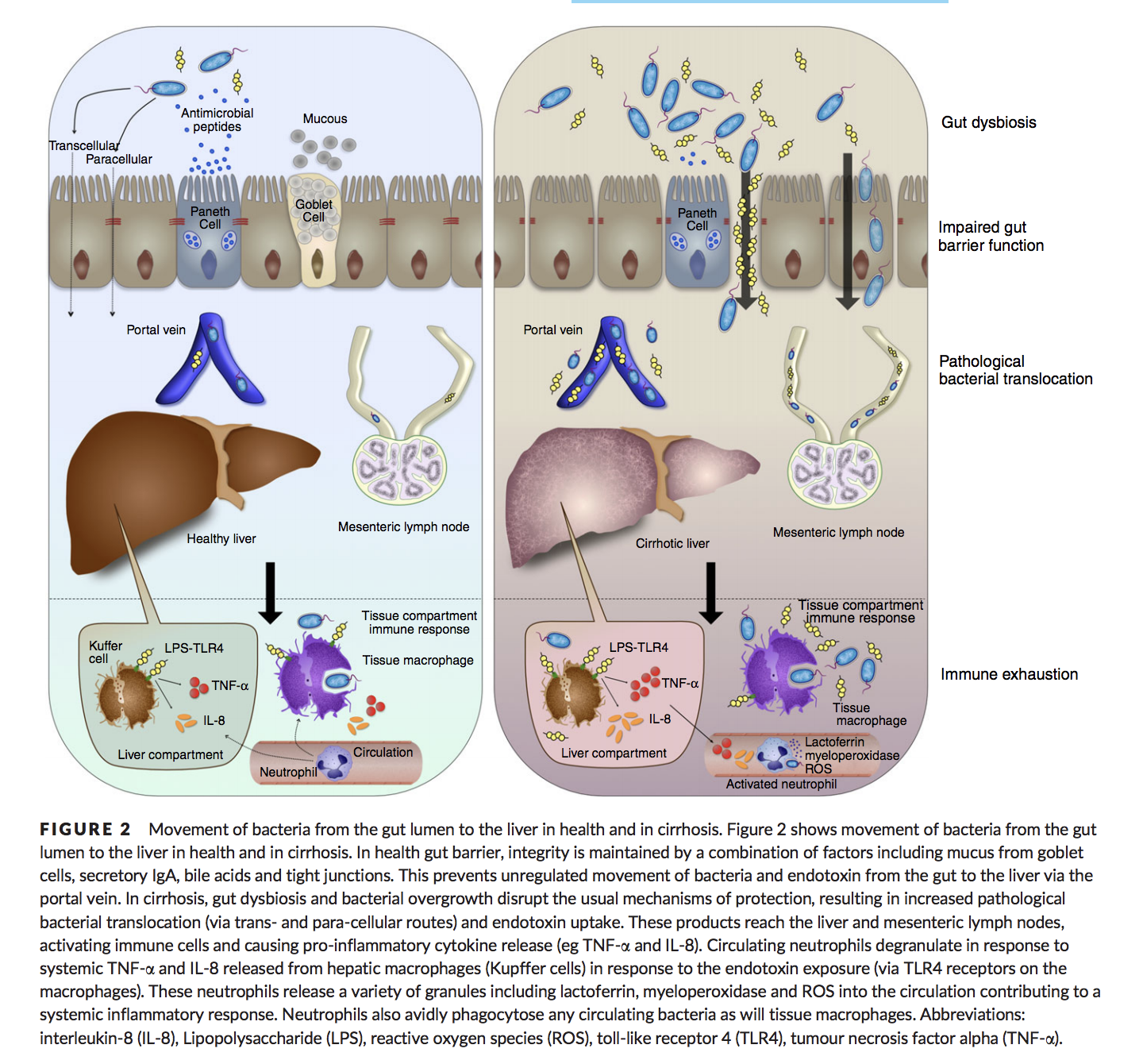 Image taken from: Review article: the gut microbiome as a therapeutic target in the pathogenesis and treatment of chronic liver disease showing a healthy gut on the left and a dysbiotic gut on the right and their association with inflammation, liver function and damage.