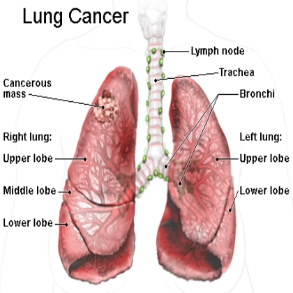 http://cancer-treatment-madurai.com/types-of-cancer-lung-cancer.php