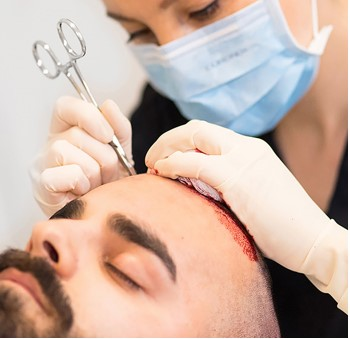Extraction of hair grafts