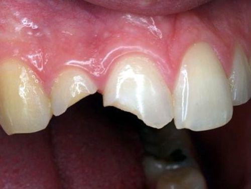 Mức độ nào thì nên hàn trám răng cửa bị mẻ?